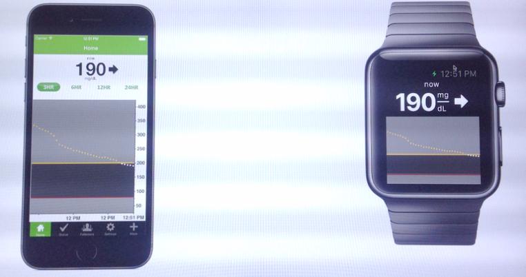dexcom-aplikacja-apple-watch
